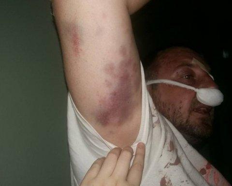 В Киеве полиция жестоко избила АТОшников, обнародованы фото и видео