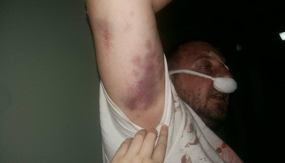 Ветераны АТО были безжалостно избиты полицейскими водном изкафе— волонтер