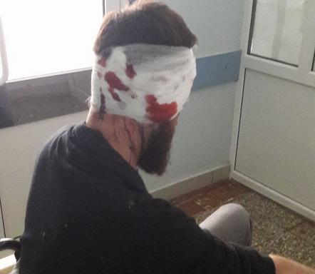 Стало известно об избиении депутата-антикоррупционера в Харькове