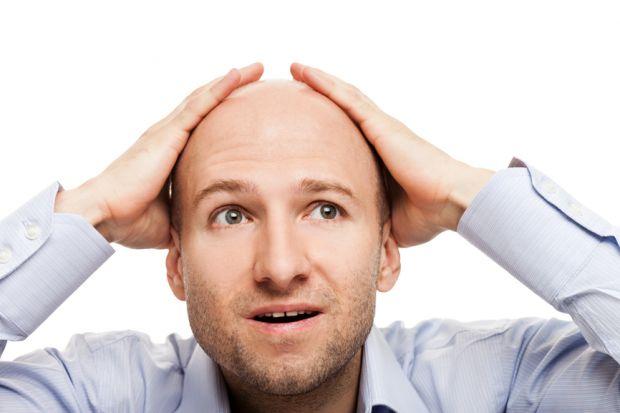 Медики назвали звичку, яка сприяє облисінню у чоловіків