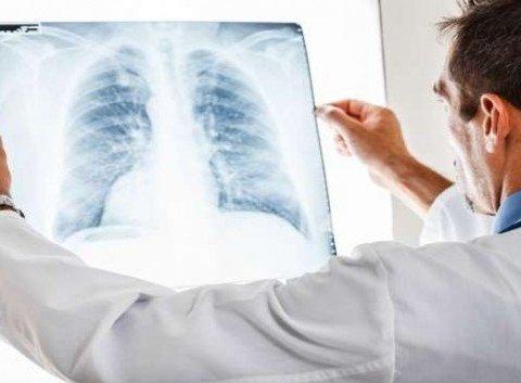 Опасный рак легких: что следует знать и как уберечься