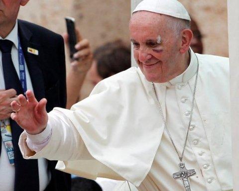 Папа Римский Франциск пострадал в Колумбии