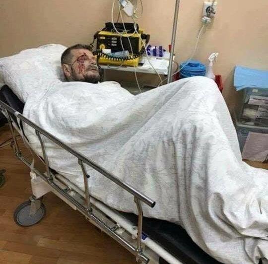 Взрыв в Киеве: охранник Мосийчука погиб, нардепа срочно оперируют