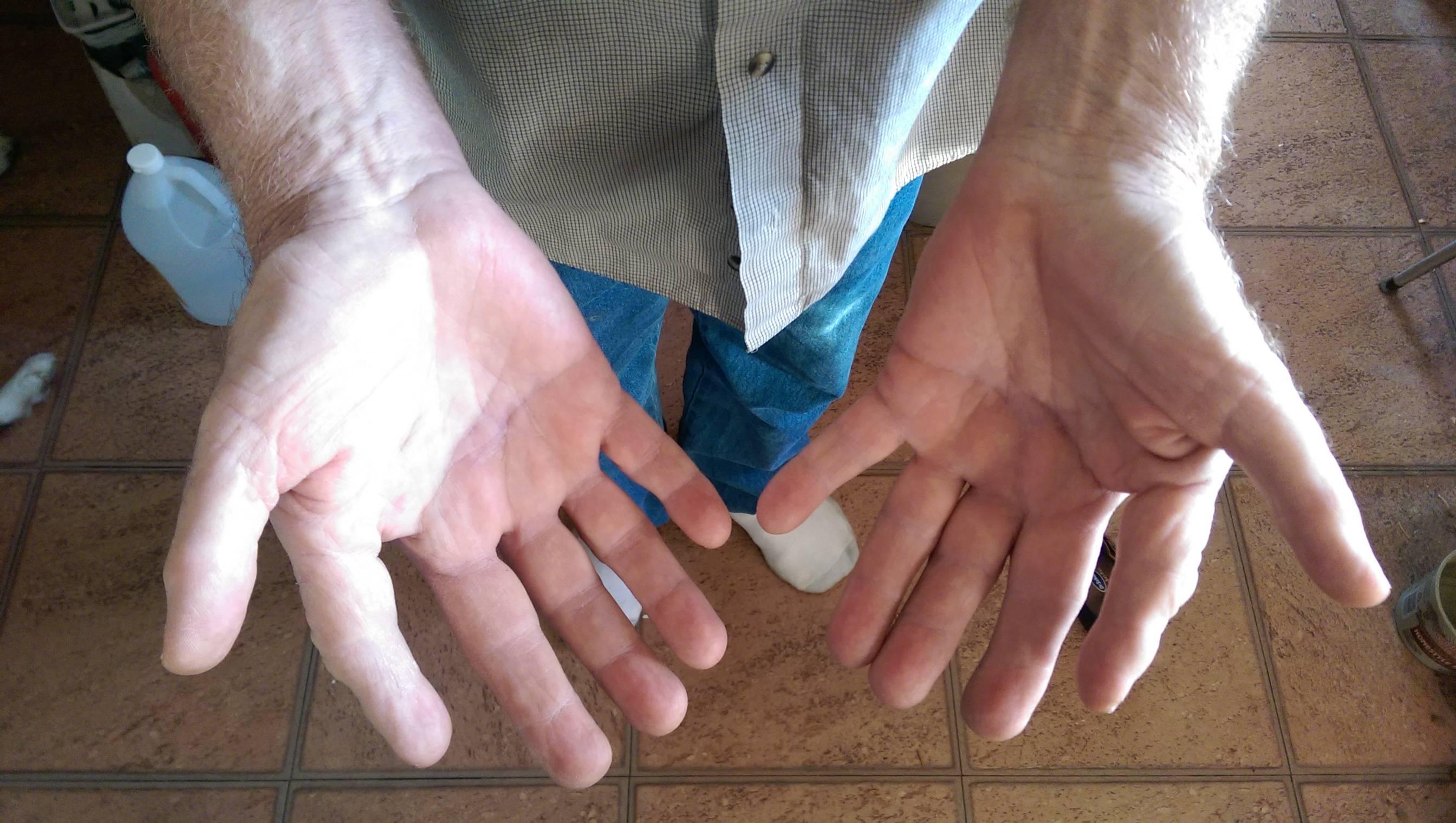 Почему немеют руки: 7 основных причин этого состояния