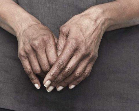 Боротьба з артритом: лікарі назвали ефективний спосіб