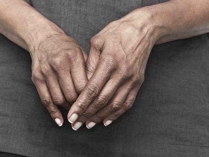 артрит, руки, суглоби