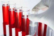 Эти восемь продуктов эффективно разжижают вашу кровь
