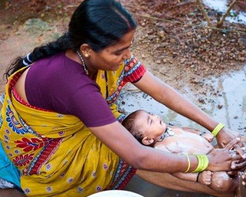 »Ребенок-русалка» из Индии поразила украинцев
