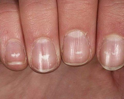 Комаровский назвал 10 признаков серьезных заболеваний, о которых сигнализируют ногти
