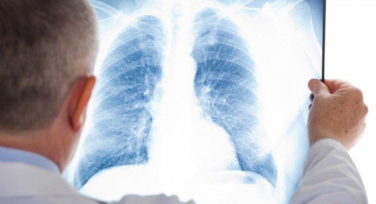 Відкриття німецьких вчених зробило революцію у лікуванні туберкульозу