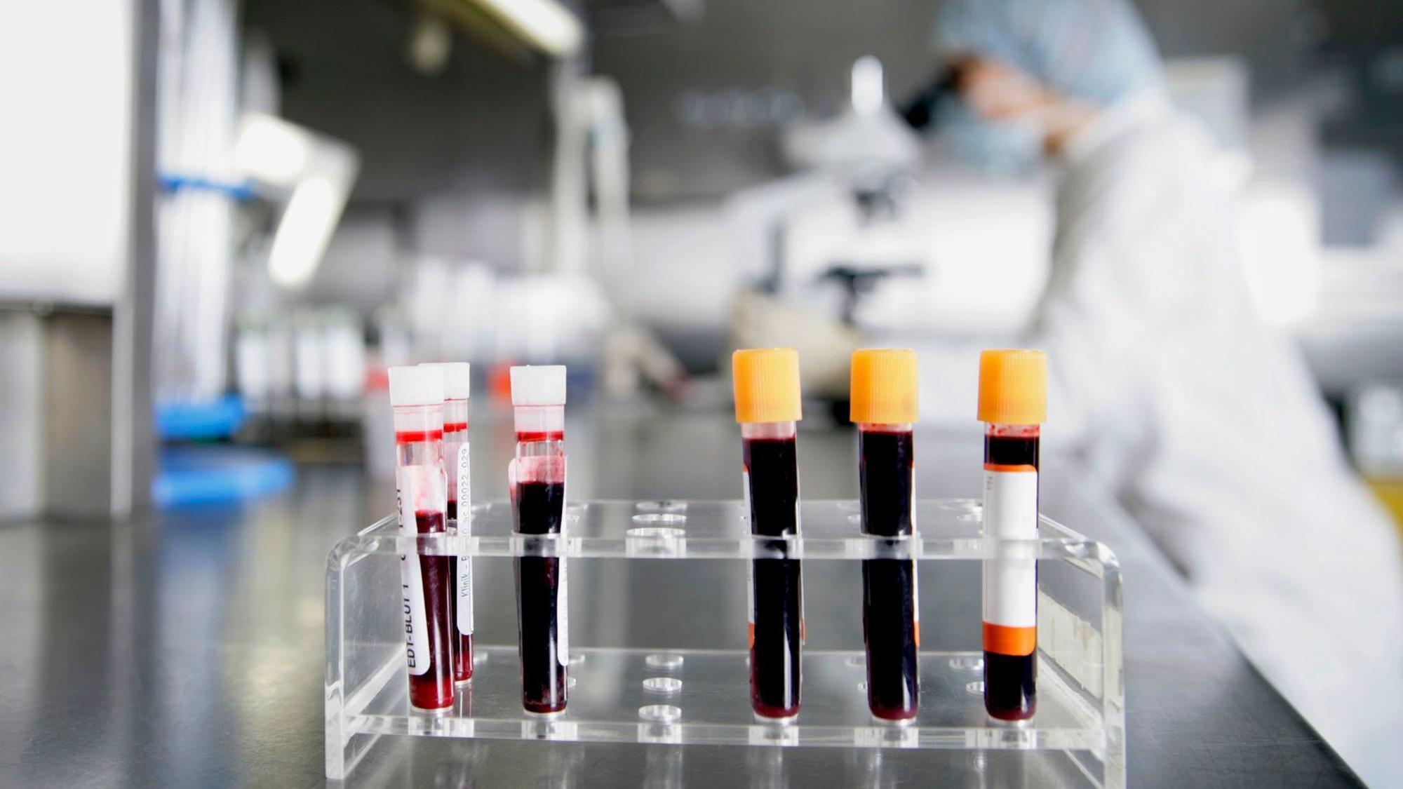 Рак начнут искать по анализу крови