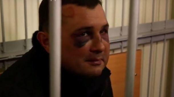 Зламана не лише щелепа: з'явилися подробиці затримання Шепелєва