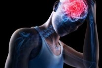Як уникнути інсульту: назвали п'ять дієвих способів