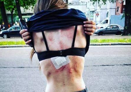 В Днепре во время финала Кубка Украины копы жестоко избили девушку: фото