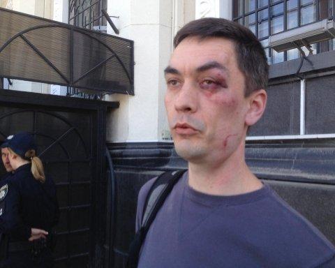 Силовики не спасли одесского антимайдановца от избиения