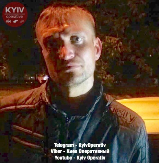 """""""Переламав ребра"""": Київ сколихнув зухвалий напад на жінку"""