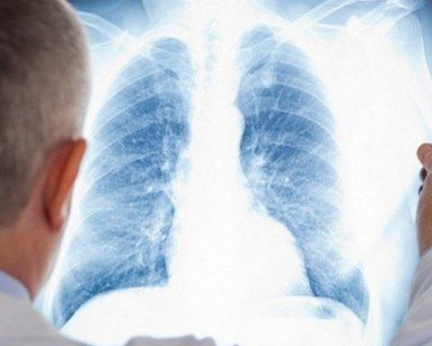 Как выглядят легкие курильщика и здорового человека: медики показали
