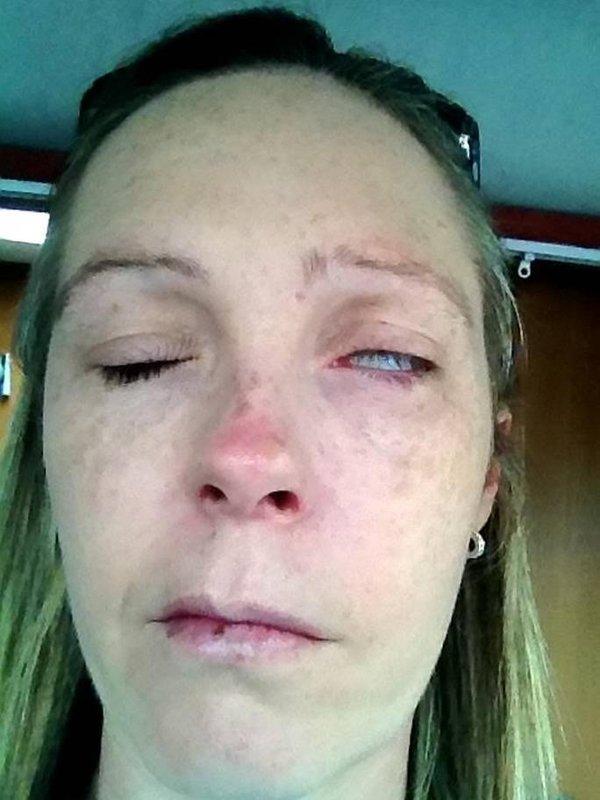 Жінка втратила можливість розмовляти через укус кліща