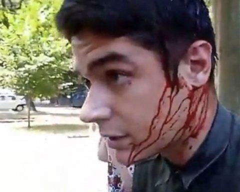 Подробиці спроби вбивства активіста в Одесі