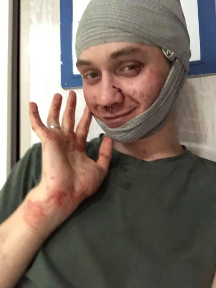 »Настоящие мужчины пьют пиво»: в Киеве жестоко избили «сомелье» за алкогольные предпочтения