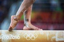 Внезапно скончалась легендарная гимнастка, двукратная олимпийская чемпионка