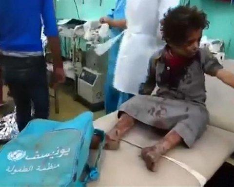 В Йемене в результате авиаудара погибли десятки детей: жуткое видео — 18+