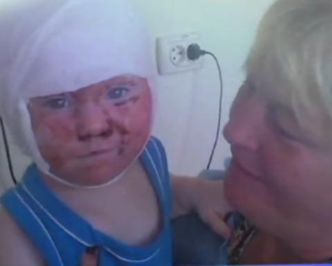 Воспитательница облила кипятком маленького ребенка: подробности трагической ЧП