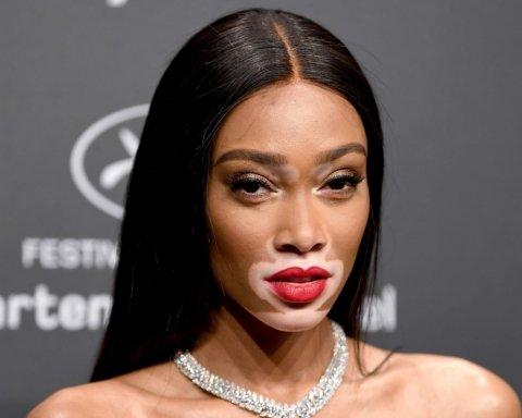 Издевались в детстве: моделью Victoria's Secret стала девушка с необычной внешностью