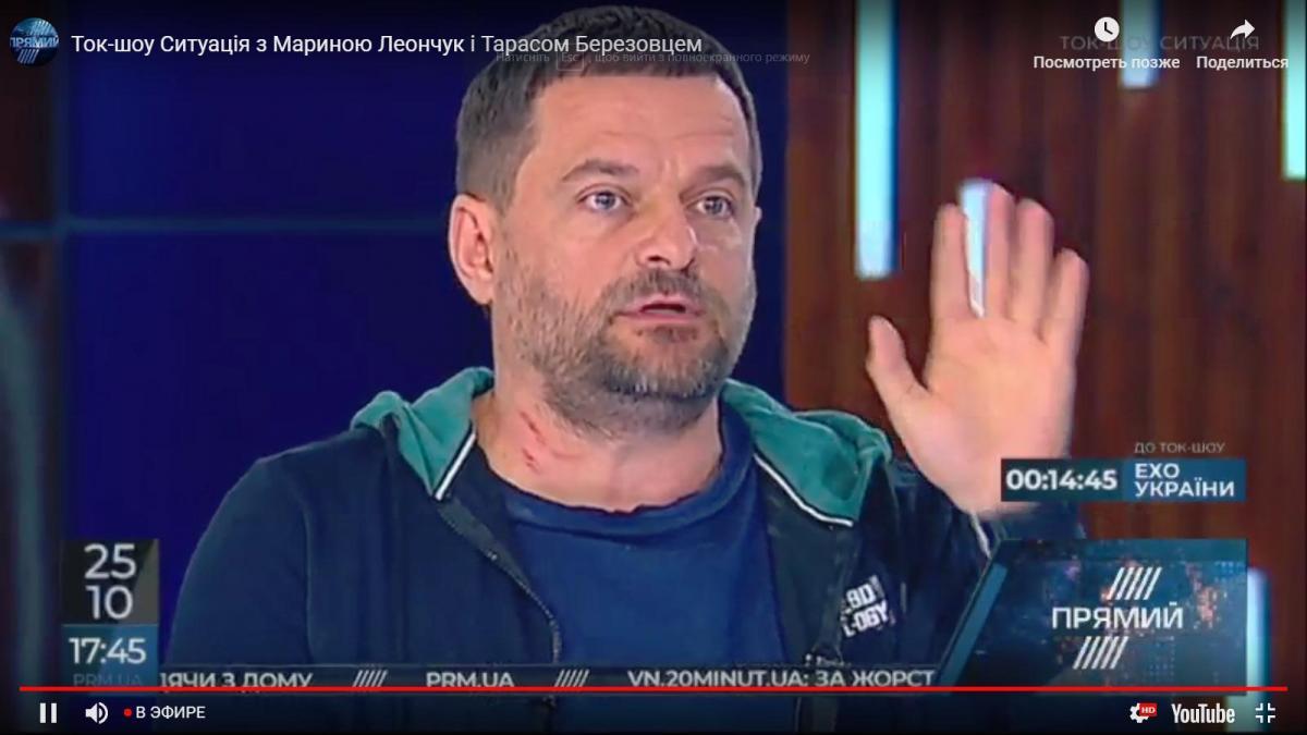 Український нардеп побився до крові в прямому ефірі: відео