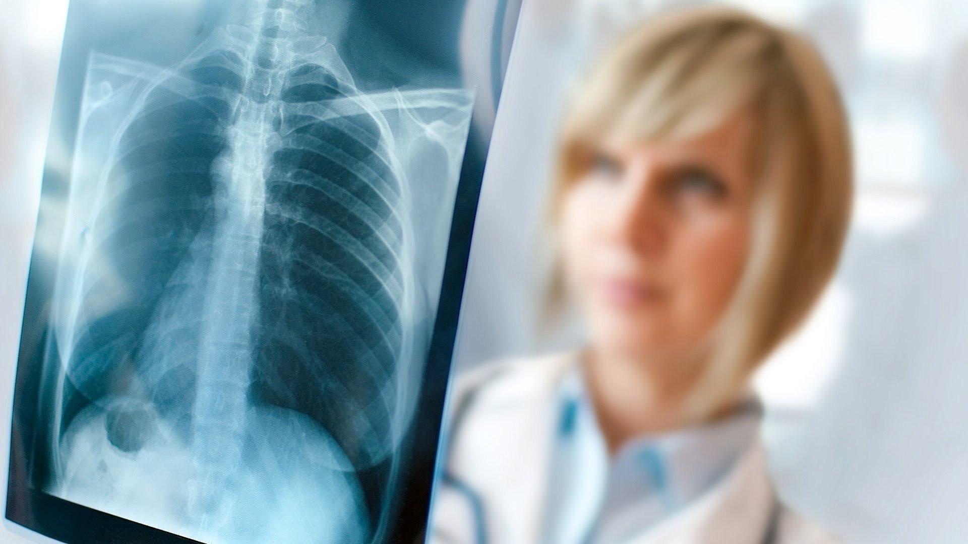 Украинцам обещают бесплатный рентген и УЗИ: кому позволят пройти диагностику без денег