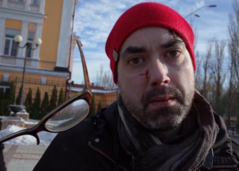 В Киеве напали на иностранного журналиста: фото и подробности