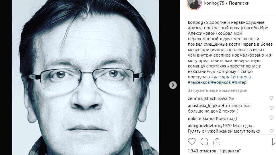Бійка Віторгана з ймовірним коханцем Собчак: зламаний ніс, чутки і відео