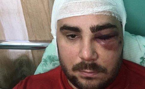 В Запорожье ранили известного активиста: что случилось