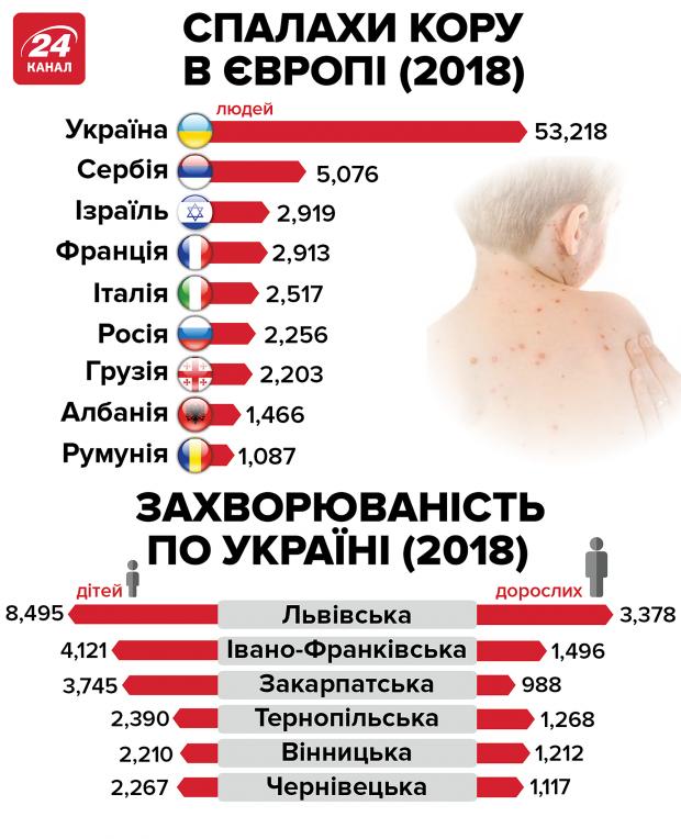 Вспышка кори в Украине: медики ужаснули статистикой заболеваемости