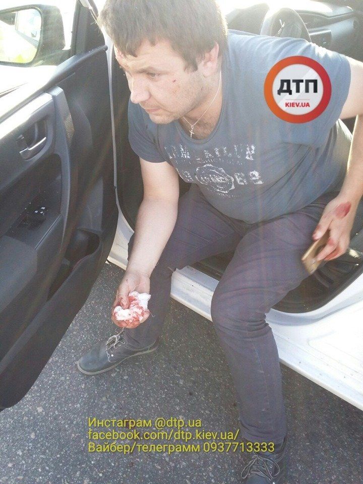 У Києві п'яний водій влаштував небезпечну ДТП: опубліковано фото
