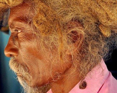 Индиец 40 лет не стриг и не мыл волосы: шокирующие фото