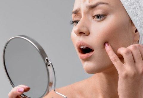Диетологи рассказали, какие продукты провоцируют проблемы с кожей
