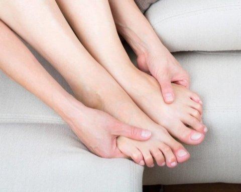 Лікарі розповіли, як позбутися набряків ніг