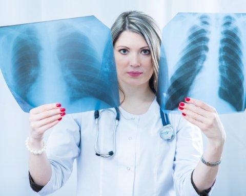Врачи назвали скрытые симптомы рака легких