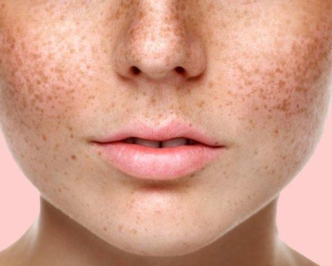Дерматологи подсказали, что такое пигментные пятна на коже и как с ними бороться