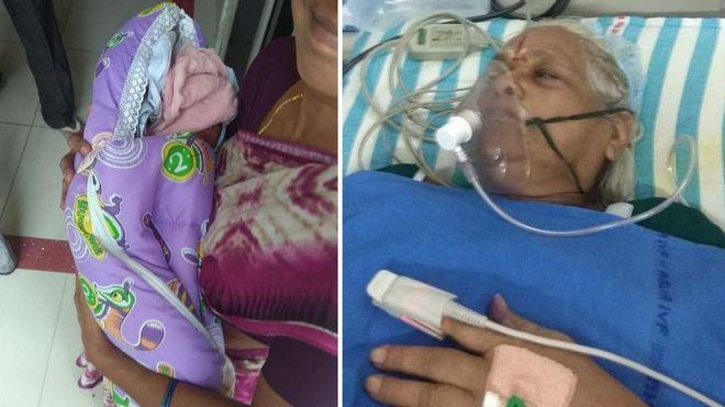 В Индии 73-летняя женщина родила близнецов: у «счастливого» отца случился инсульт
