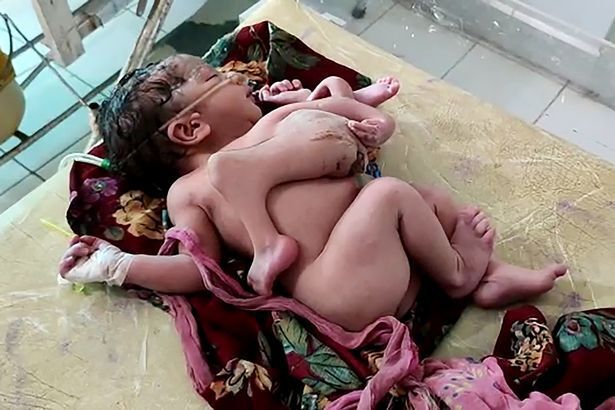 В Индии родился ребенок-мутант с 4 ногами и 3 руками