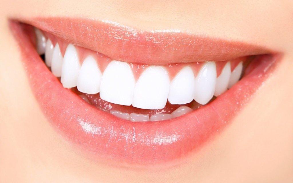 Нужно ли удалять зубной камень?