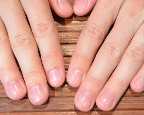 Як стан нігтів сигналізує про появу онкології
