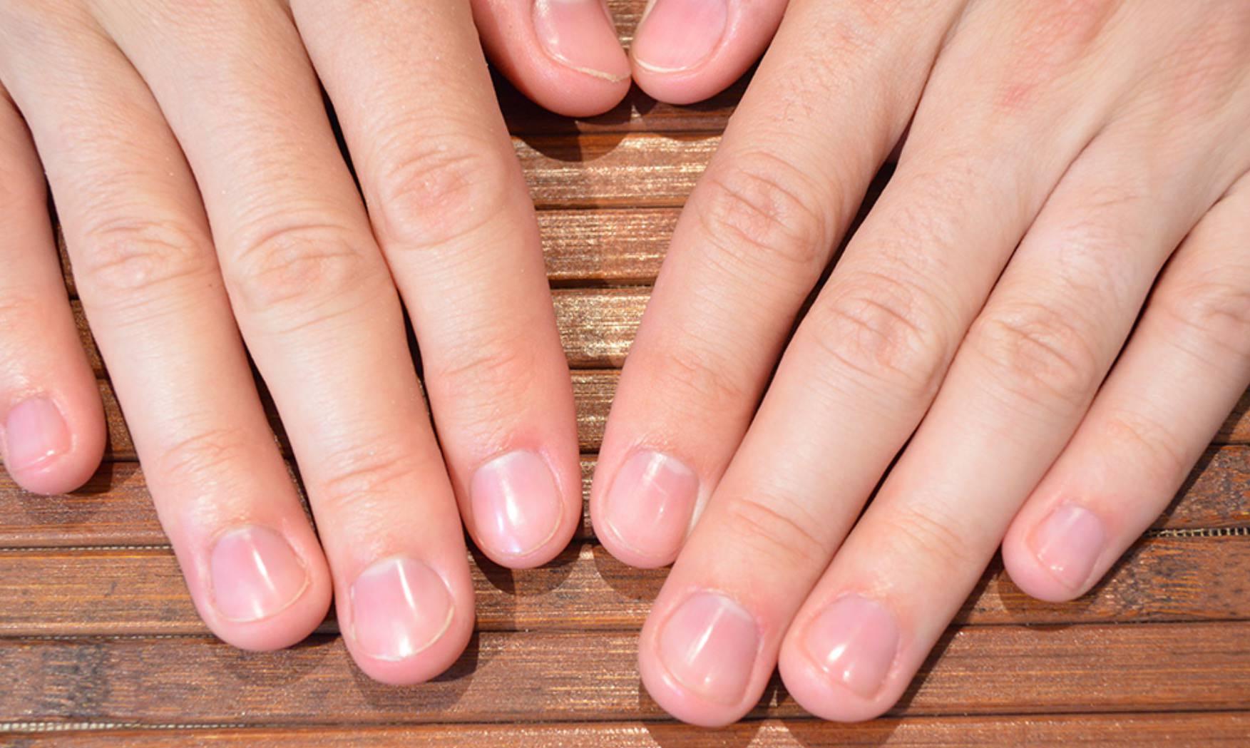 Короткие ногти на руках фото