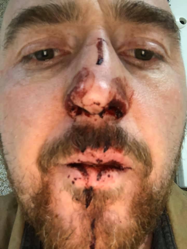 В Польше жестоко избили украинского актера