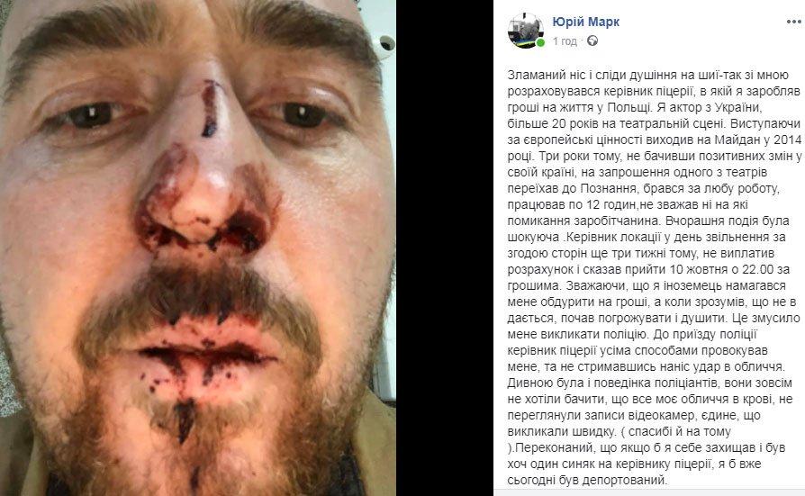 У Польщі напали на відомого українського актора: фото наслідків