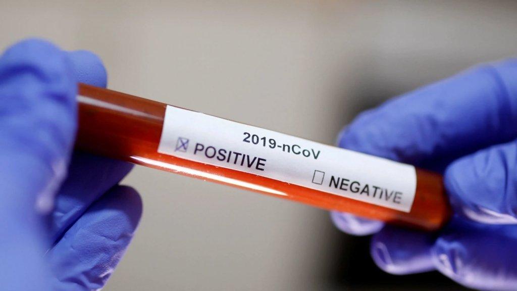 Во Львове медики не хотели лечить женщину с симптомами коронавируса