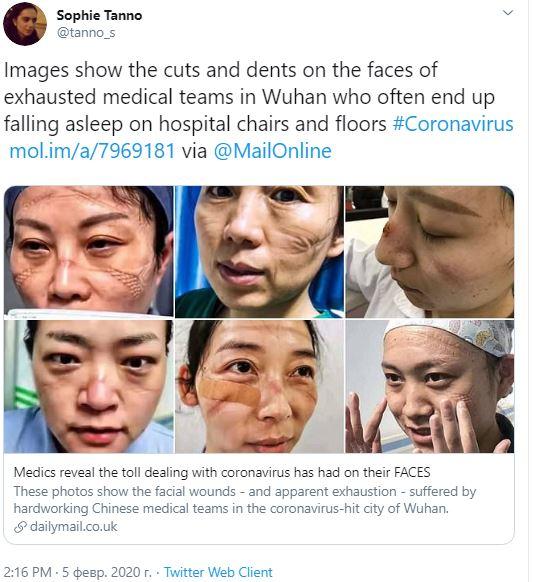 «Шрамы» от медицинских масок и истощение: мощные фото китайских врачей, которые спасают людей от коронавируса