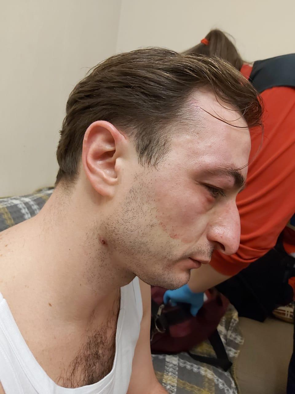 Нападение на главврача Института рака: камеры видеонаблюдения зафиксировали злоумышленников